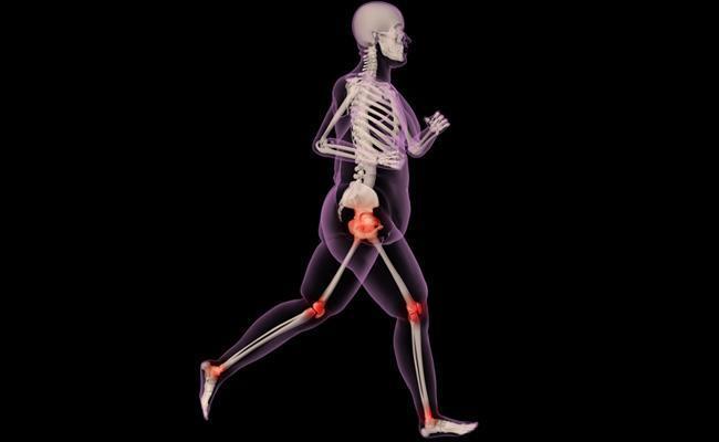 surpoids arthrose